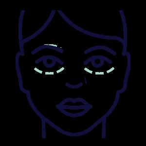 פיגמנטציה מתחת לעיניים