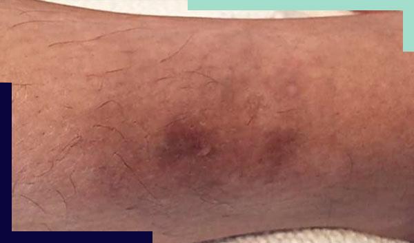 כתמים בעור הרגליים